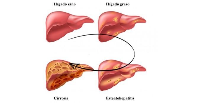 hígado graso y disfunción eréctil